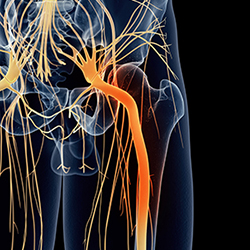 Discontinuation of an RCT on management of acute sciatica
