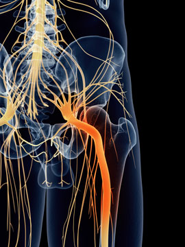 Digital illustration of inflamed sciatic nerve, in orange, overlaid over the translucent outline of the spine, pelvic bone and femur